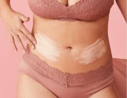 קרם בטן לטיפול בסימני מתיחה